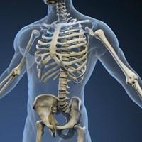 Knochenkrebs Skelett